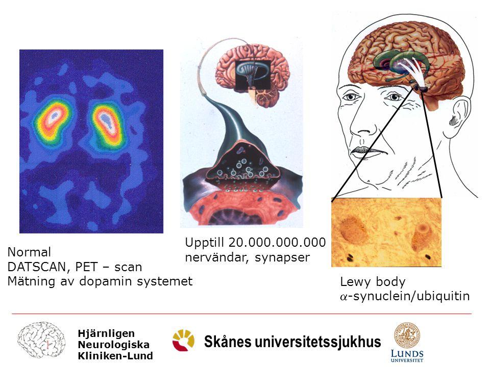 Hjärnligen Neurologiska Kliniken-Lund Skånes universitetssjukhus Behandlingsstrategi Förordar tidig behandling: sannolikt mindre betydelse av vilket preparat // MAO-B-I, Levodopa, agonist Sträva efter kombinationssbehandling: olika typer av medel att ersätta dopamin undvika kortverkande medel förorda långverkande medel undvika fluktuationer (underbehandling ogynnsamt liksom överbehandling)