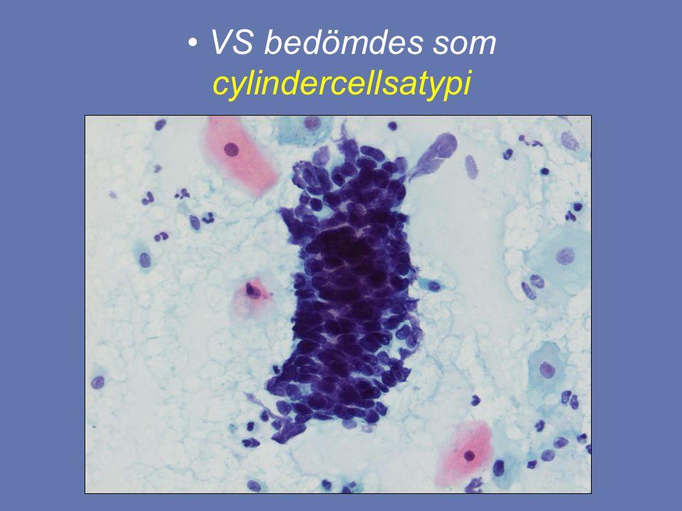 VS bedömdes som cylindercellsatypi