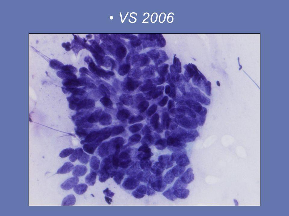 39 årig kvinna Benigna VS x 6 2006 gyn status: lättblödande cervix, kontaktblödning Fall 2