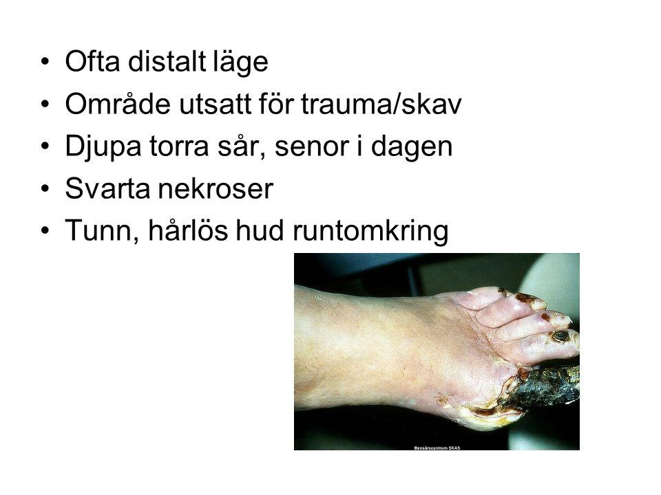 Ofta distalt läge Område utsatt för trauma/skav Djupa torra sår, senor i dagen Svarta nekroser Tunn, hårlös hud runtomkring