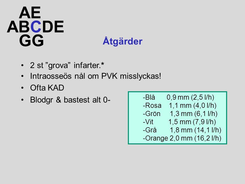 """ABCDE AE GG Åtgärder 2 st """"grova"""" infarter.* Intraosseös nål om PVK misslyckas! Ofta KAD Blodgr & bastest alt 0- -Blå 0,9 mm (2,5 l/h) -Rosa 1,1 mm (4"""