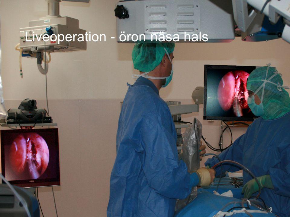 DIVISION Länsteknik Liveoperation - öron näsa hals