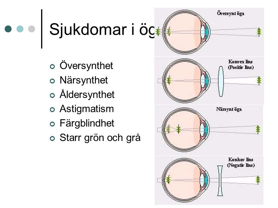 Örat Ytterörat Mellanörat Innerörat Hörselben -hammaren -städet -stigbygeln Ovala fönstret Snäckan Hörselnerven 20 -20 000 Hz