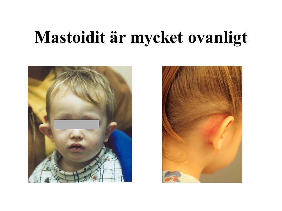 Mastoidit är mycket ovanligt