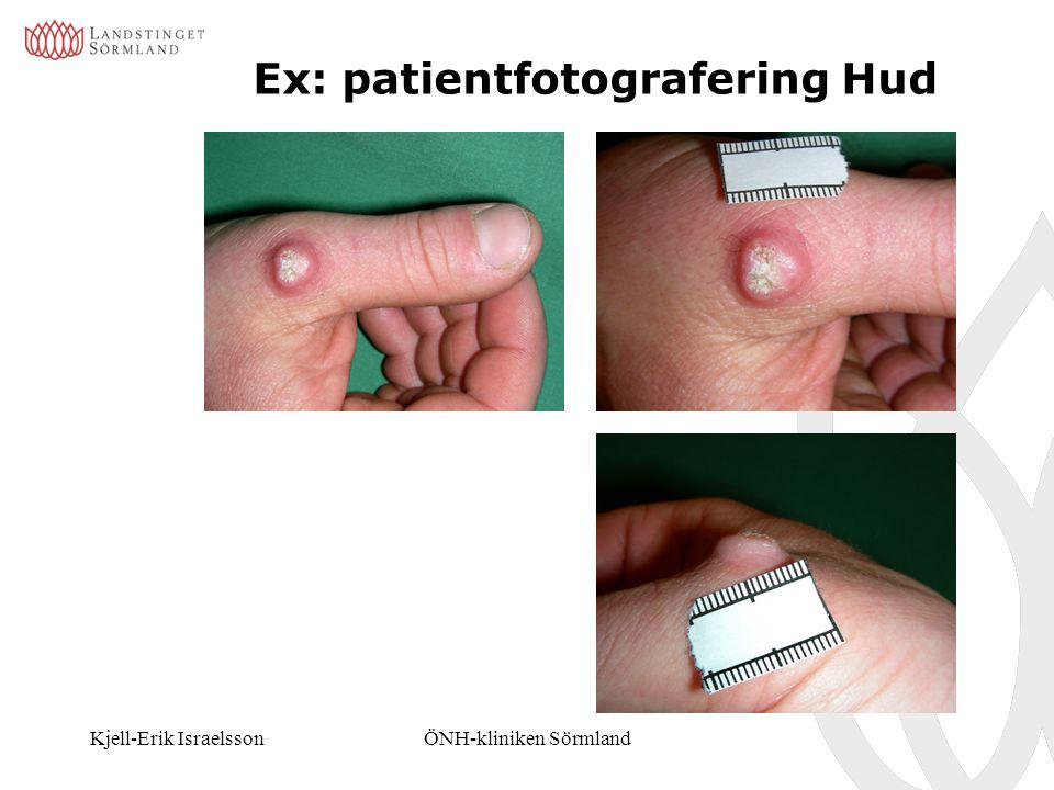 Kjell-Erik IsraelssonÖNH-kliniken Sörmland Ex: patientfotografering Hud