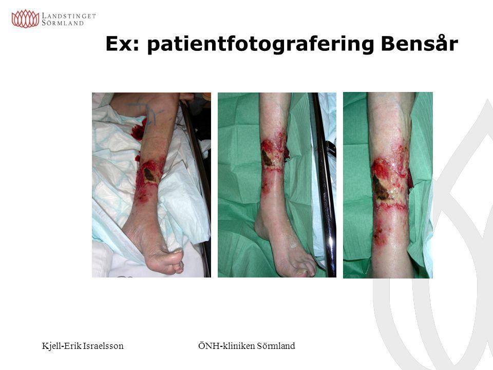Kjell-Erik IsraelssonÖNH-kliniken Sörmland Ex: patientfotografering Bensår