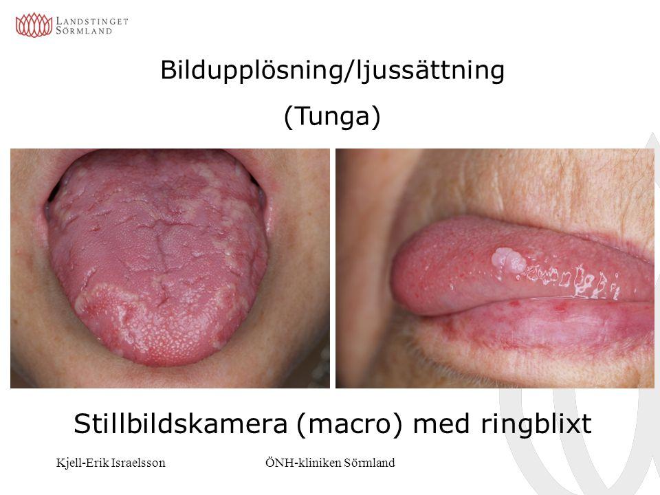 Kjell-Erik IsraelssonÖNH-kliniken Sörmland Bildupplösning/ljussättning (Tunga) Stillbildskamera (macro) med ringblixt