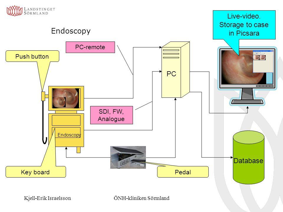 Kjell-Erik IsraelssonÖNH-kliniken Sörmland Endoscopy PC Database Endoscopy Push button Key board PC-remote SDI, FW, Analogue Live-video. Storage to ca