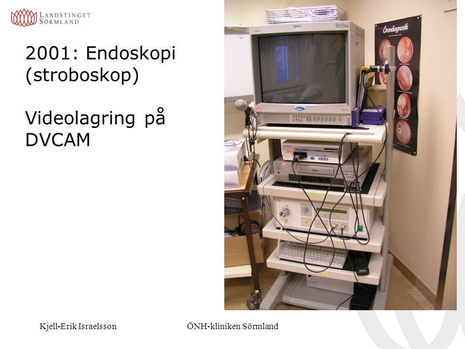 Kjell-Erik IsraelssonÖNH-kliniken Sörmland 2001: Endoskopi (stroboskop) Videolagring på DVCAM