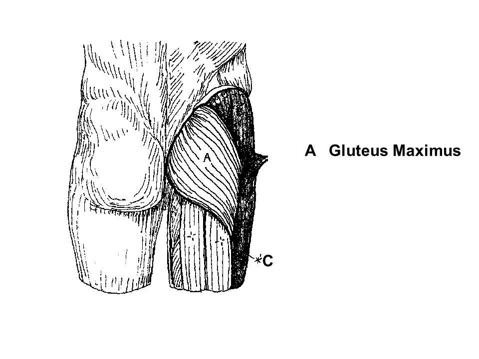 A Gluteus Maximus C