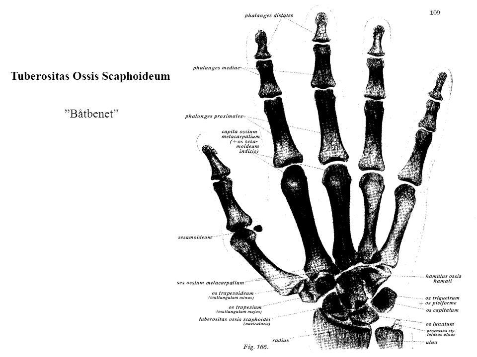 """Båtbenet"" Tuberositas Ossis Scaphoideum"