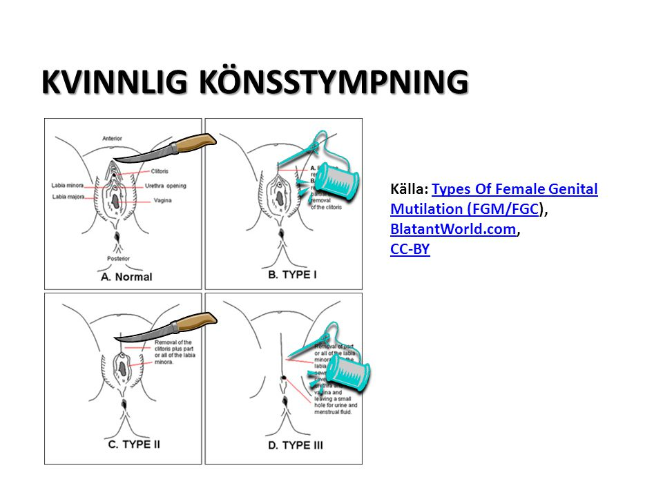 KVINNLIG KÖNSSTYMPNING Källa: Types Of Female Genital Mutilation (FGM/FGC), BlatantWorld.com,Types Of Female Genital Mutilation (FGM/FGC BlatantWorld.