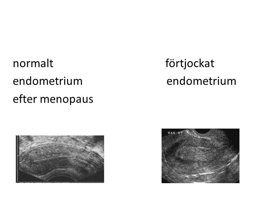 normalt förtjockat endometrium efter menopaus