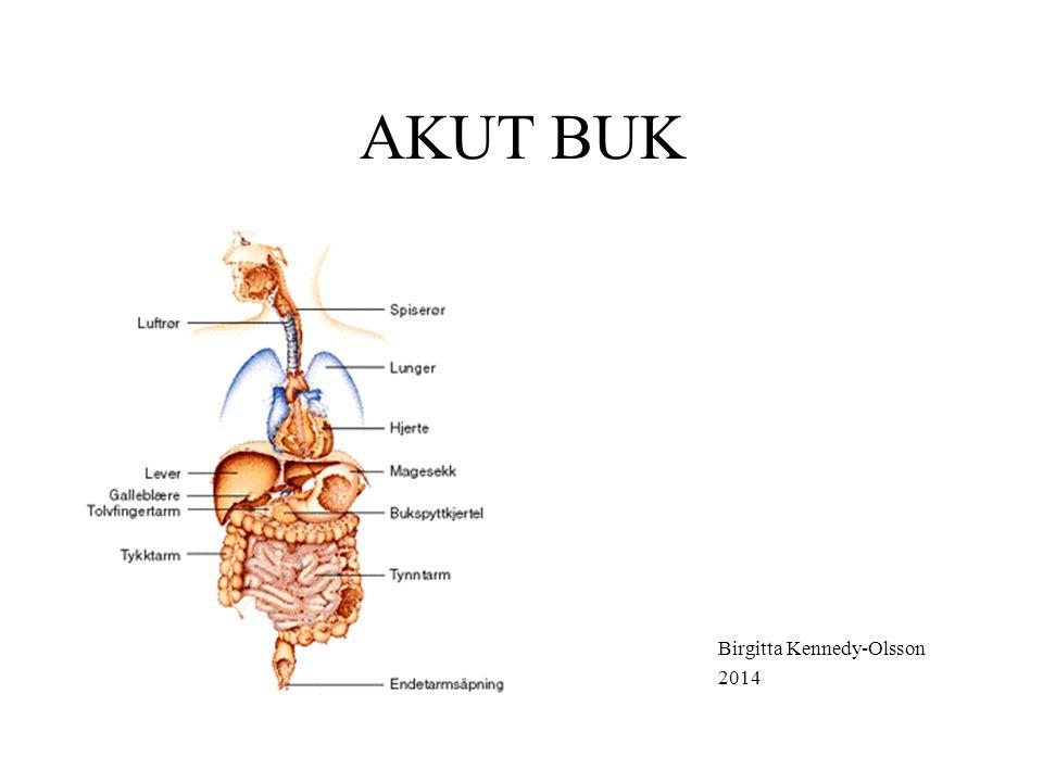 INDELNING AV AKUTA BUKAR Buksmärta i kombination med chock Buksmärta med samtidig förekomst av generell peritonit Inflammatoriska tillstånd Ileustillstånd Stensmärta