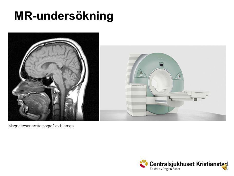 8 MR-undersökning Magnetresonanstomografi av hjärnan