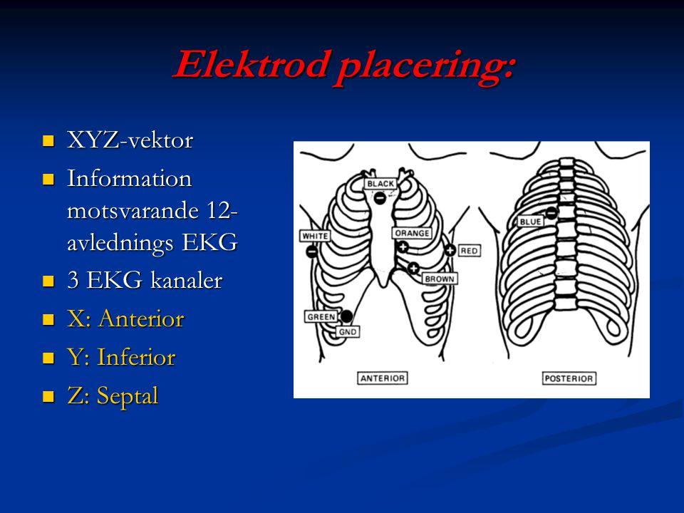 Elektrod placering: XYZ-vektor XYZ-vektor Information motsvarande 12- avlednings EKG Information motsvarande 12- avlednings EKG 3 EKG kanaler 3 EKG ka