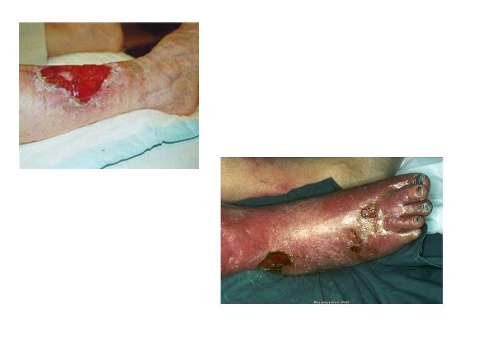 Bensår: Svårläkta sår på ben/fot > 6 v Bakterier i sår: Kolonisation, Penetration, Proliferation Invasion