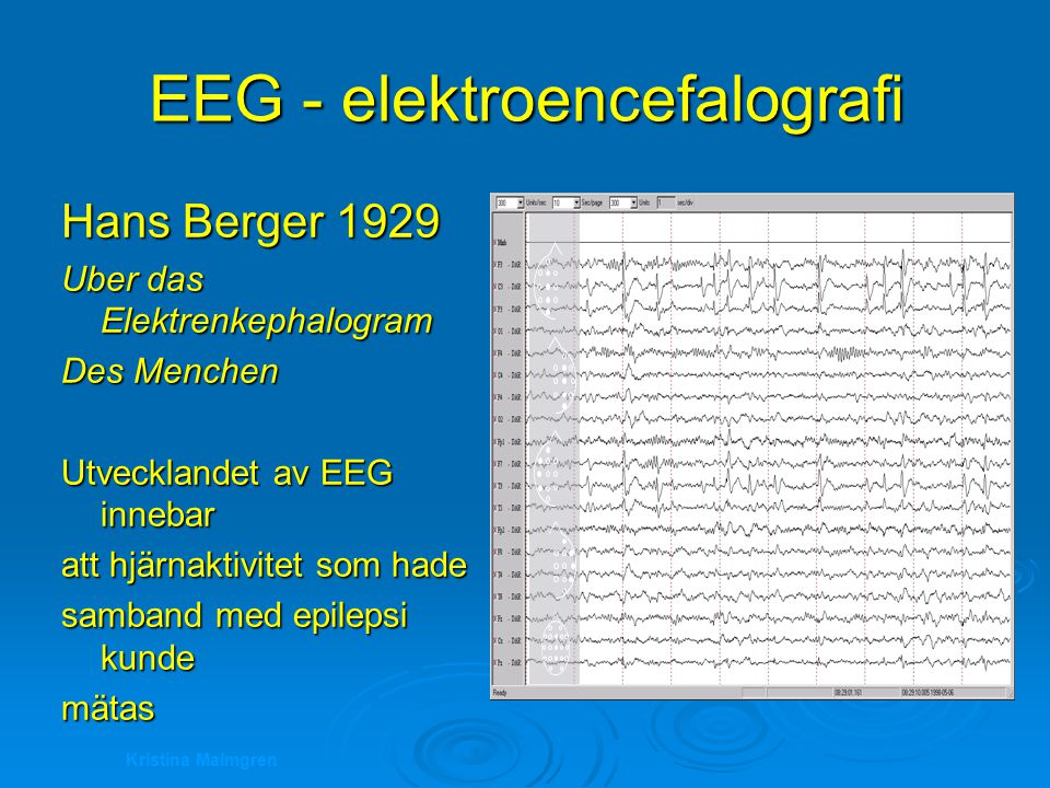 Kristina Malmgren EEG - elektroencefalografi Hans Berger 1929 Uber das Elektrenkephalogram Des Menchen Utvecklandet av EEG innebar att hjärnaktivitet