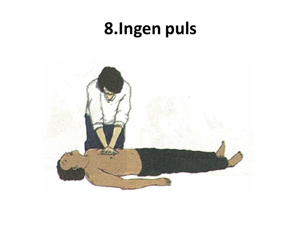8.Ingen puls