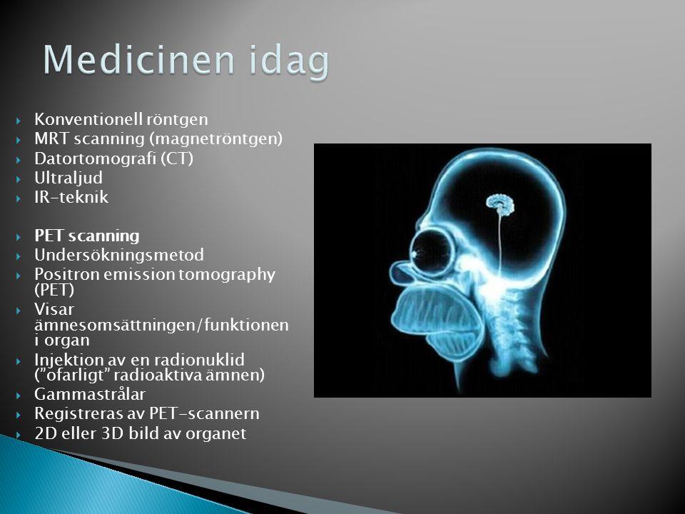  Konventionell röntgen  MRT scanning (magnetröntgen)  Datortomografi (CT)  Ultraljud  IR-teknik  PET scanning  Undersökningsmetod  Positron emission tomography (PET)  Visar ämnesomsättningen/funktionen i organ  Injektion av en radionuklid ( ofarligt radioaktiva ämnen)  Gammastrålar  Registreras av PET-scannern  2D eller 3D bild av organet