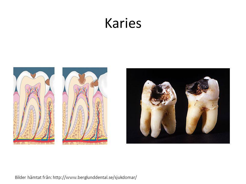 Karies Bilder hämtat från: http://www.berglunddental.se/sjukdomar/