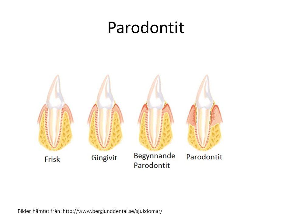 Varför får man parodontit? Bilder hämtat från: http://www.berglunddental.se/sjukdomar/