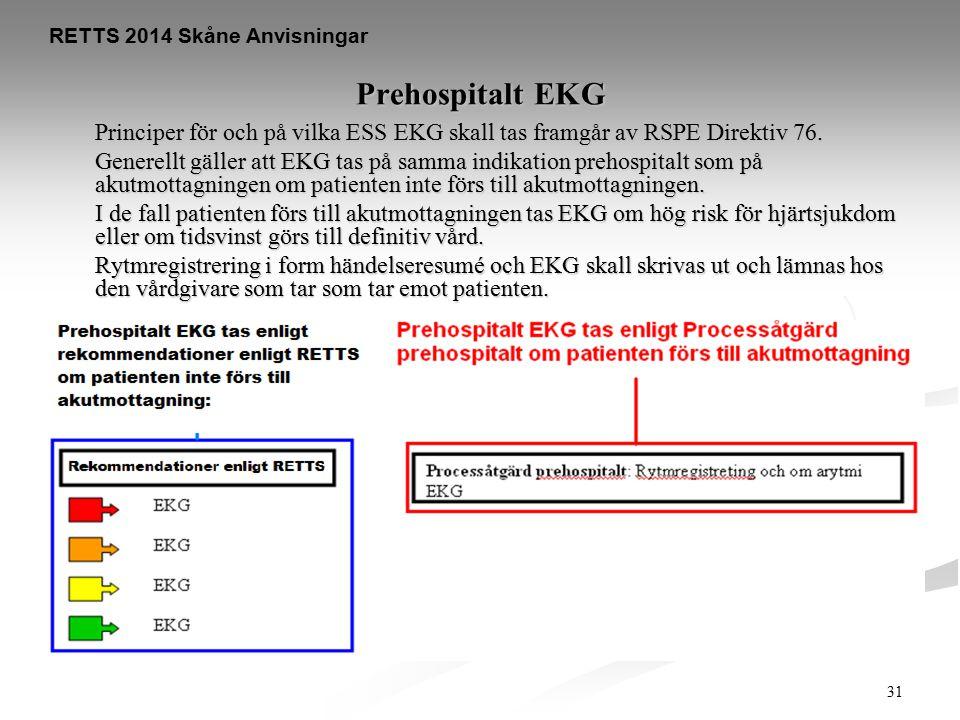 31 Prehospitalt EKG Principer för och på vilka ESS EKG skall tas framgår av RSPE Direktiv 76. Generellt gäller att EKG tas på samma indikation prehosp