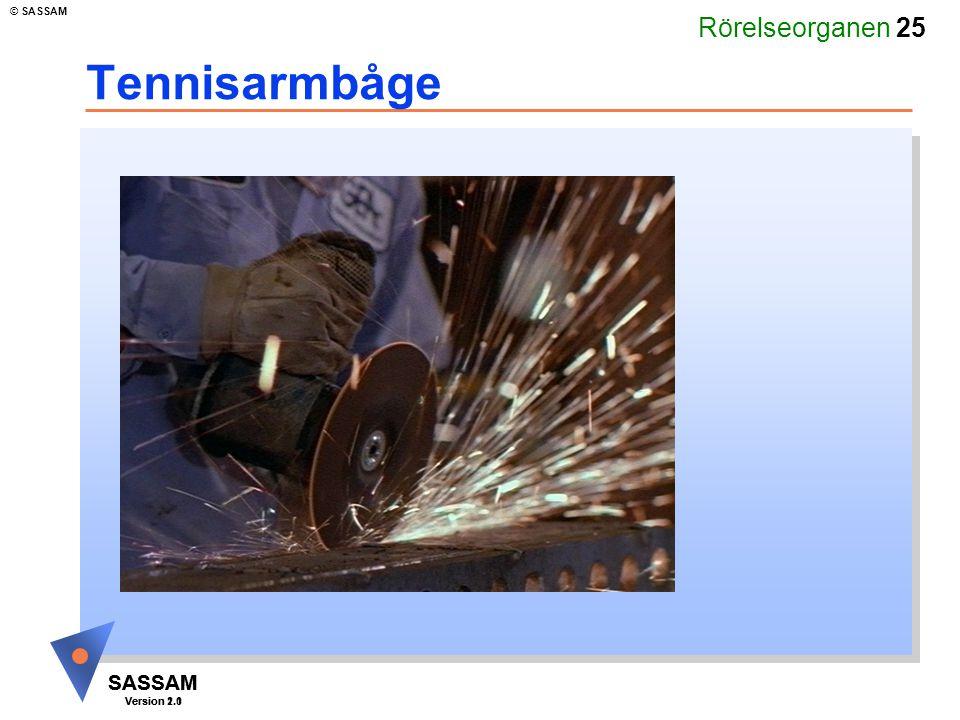 Rörelseorganen 25 SASSAM Version 1.1 © SASSAM SASSAM Version 2.0 Tennisarmbåge