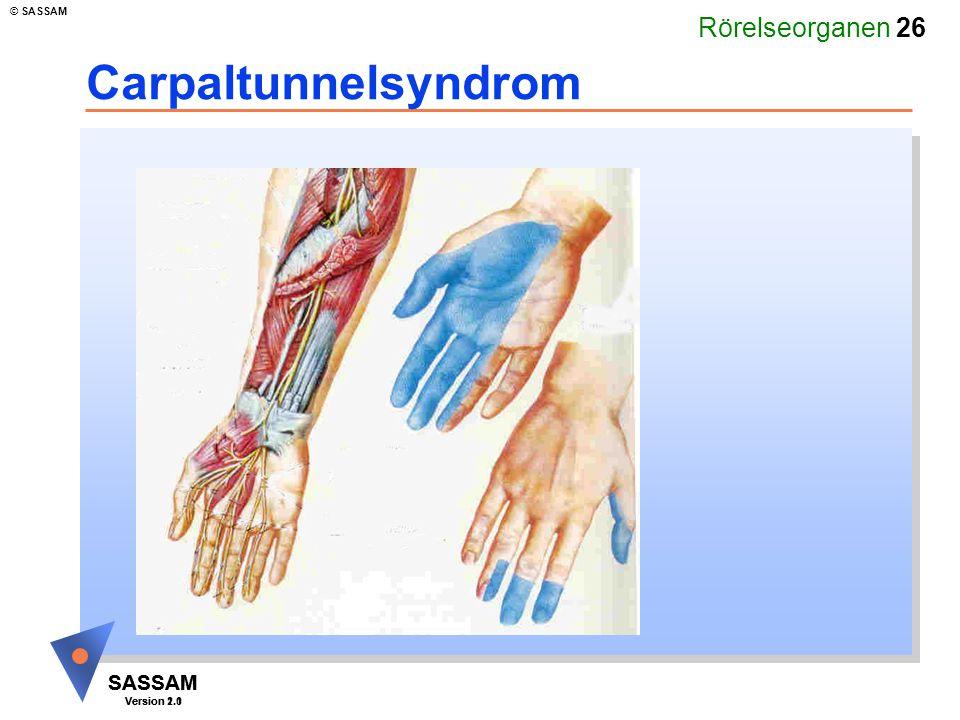 Rörelseorganen 26 SASSAM Version 1.1 © SASSAM SASSAM Version 2.0 Carpaltunnelsyndrom