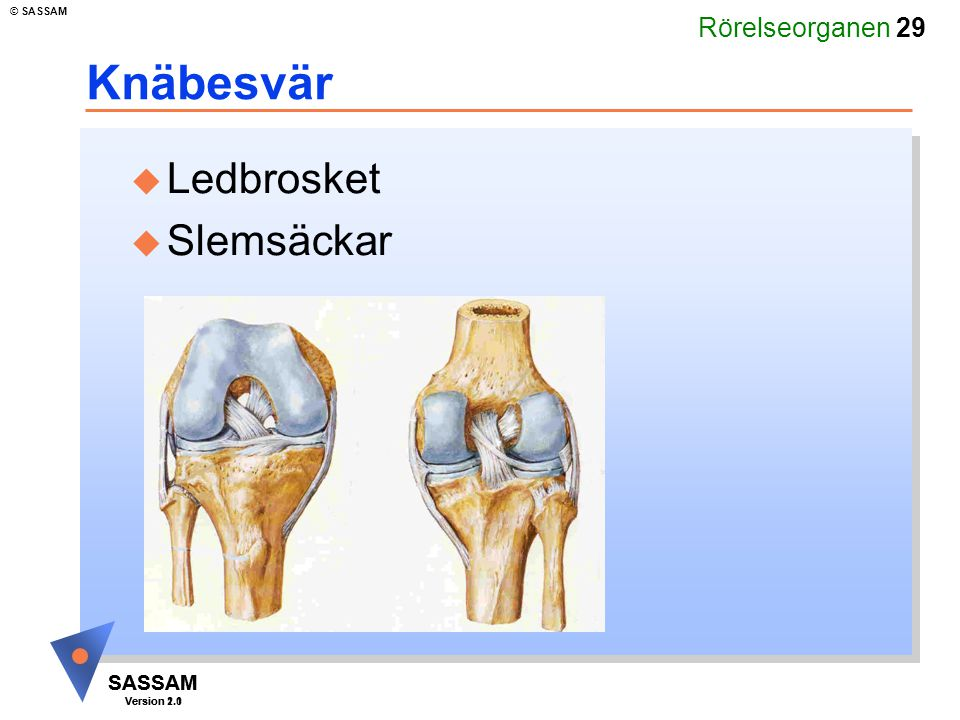 Rörelseorganen 29 SASSAM Version 1.1 © SASSAM SASSAM Version 2.0 Knäbesvär u Ledbrosket u Slemsäckar