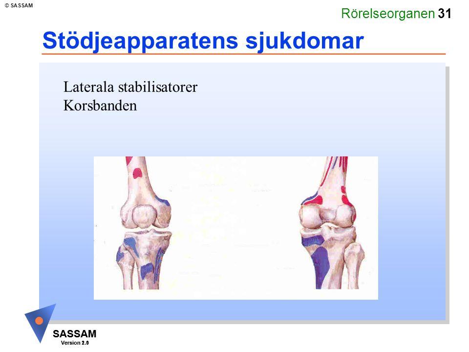Rörelseorganen 31 SASSAM Version 1.1 © SASSAM SASSAM Version 2.0 Stödjeapparatens sjukdomar Laterala stabilisatorer Korsbanden