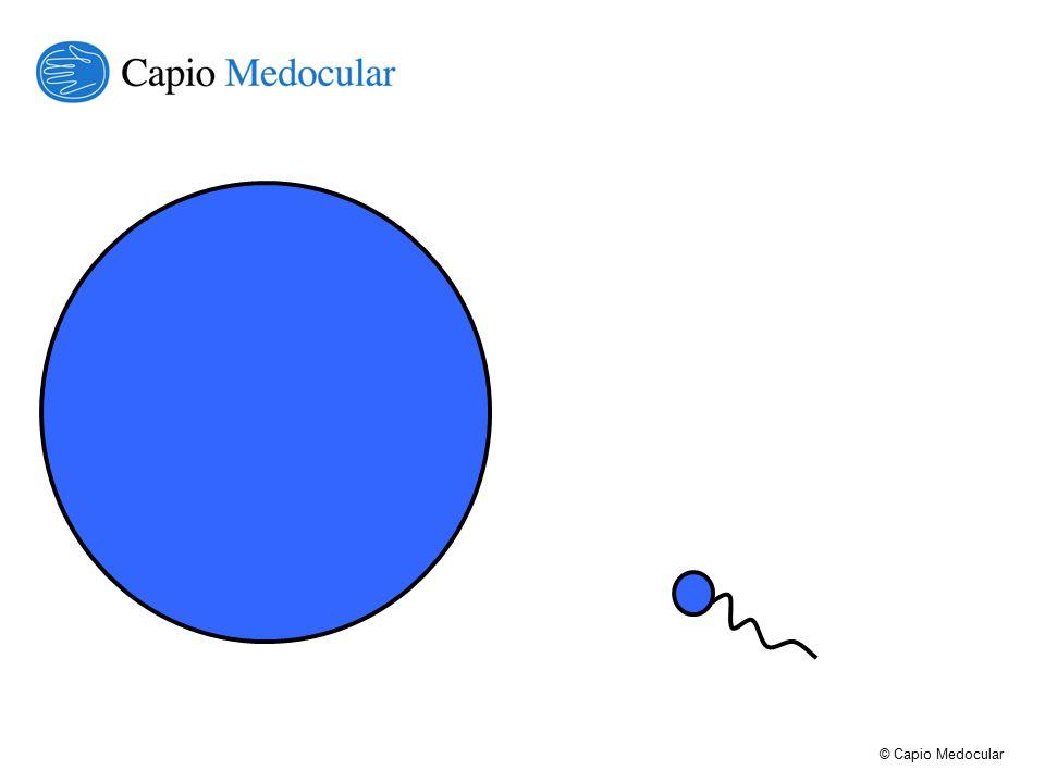 © Capio Medocular Service Line Kriterier Definierade specialiteter (Initialt) inga multispecialiteter Dokumenterad best practice Möjlighet till hög standadisering Stora patientvolymer