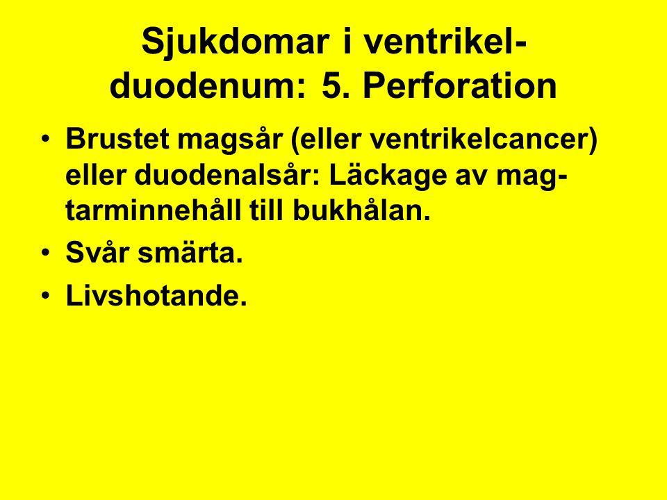 Sjukdomar i ventrikel- duodenum: 5. Perforation Brustet magsår (eller ventrikelcancer) eller duodenalsår: Läckage av mag- tarminnehåll till bukhålan.