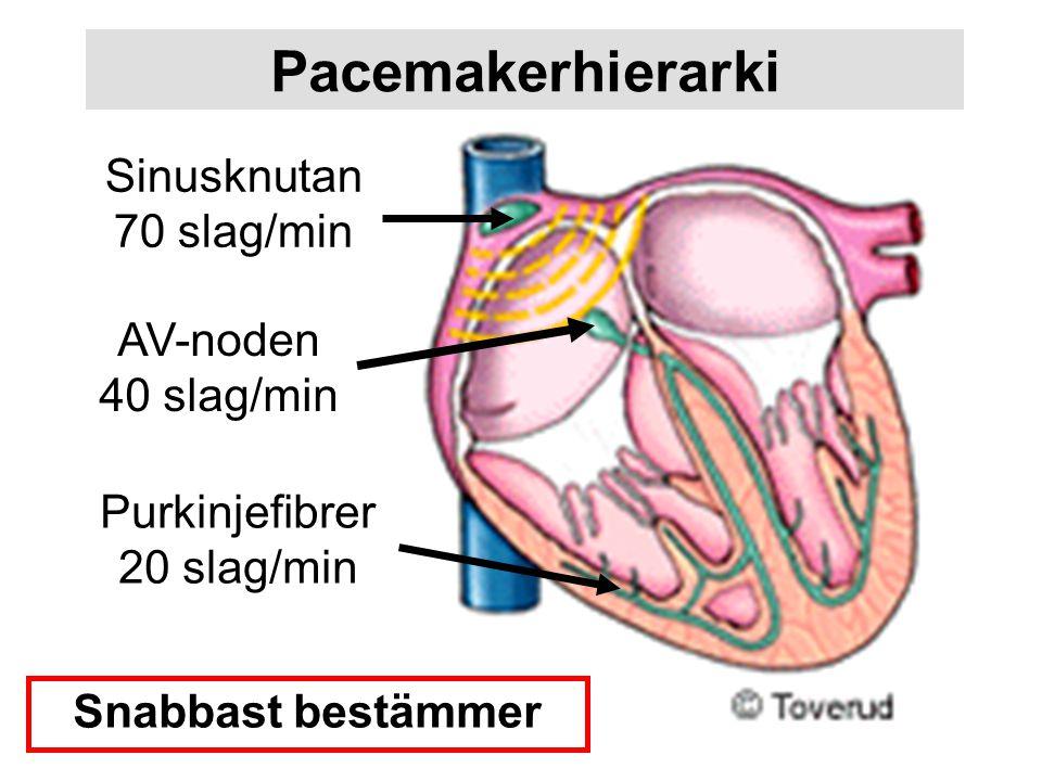 Pacemakerhierarki Sinusknutan 70 slag/min AV-noden 40 slag/min Purkinjefibrer 20 slag/min Snabbast bestämmer