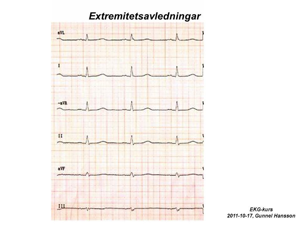 Extremitetsavledningar EKG-kurs 2011-10-17, Gunnel Hansson