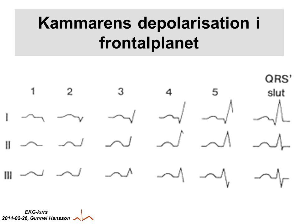 EKG-kurs 2014-02-26, Gunnel Hansson Kammarens depolarisation i frontalplanet