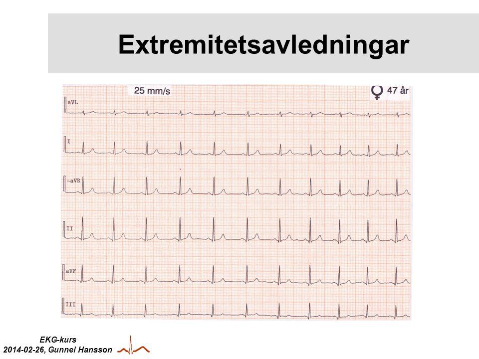 EKG-kurs 2014-02-26, Gunnel Hansson Extremitetsavledningar