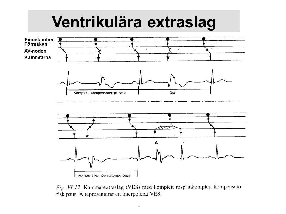 Ventrikulära extraslag Sinusknutan Förmaken AV-noden Kammrarna