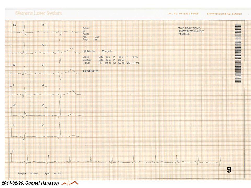 EKG-kurs 2014-02-26, Gunnel Hansson 9