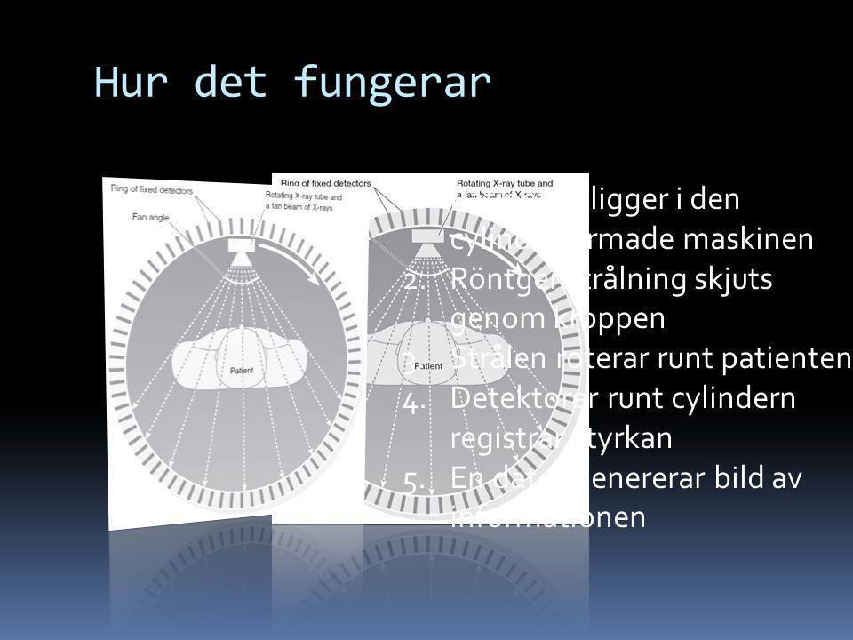 Hur det fungerar 1.Patienten ligger i den cylinderformade maskinen 2.Röntgenstrålning skjuts genom kroppen 3.Strålen roterar runt patienten 4.Detektorer runt cylindern registrar styrkan 5.En dator genererar bild av informationen