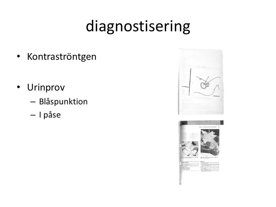 diagnostisering Kontraströntgen Urinprov – Blåspunktion – I påse