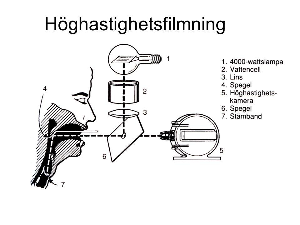 Höghastighetsfilmning