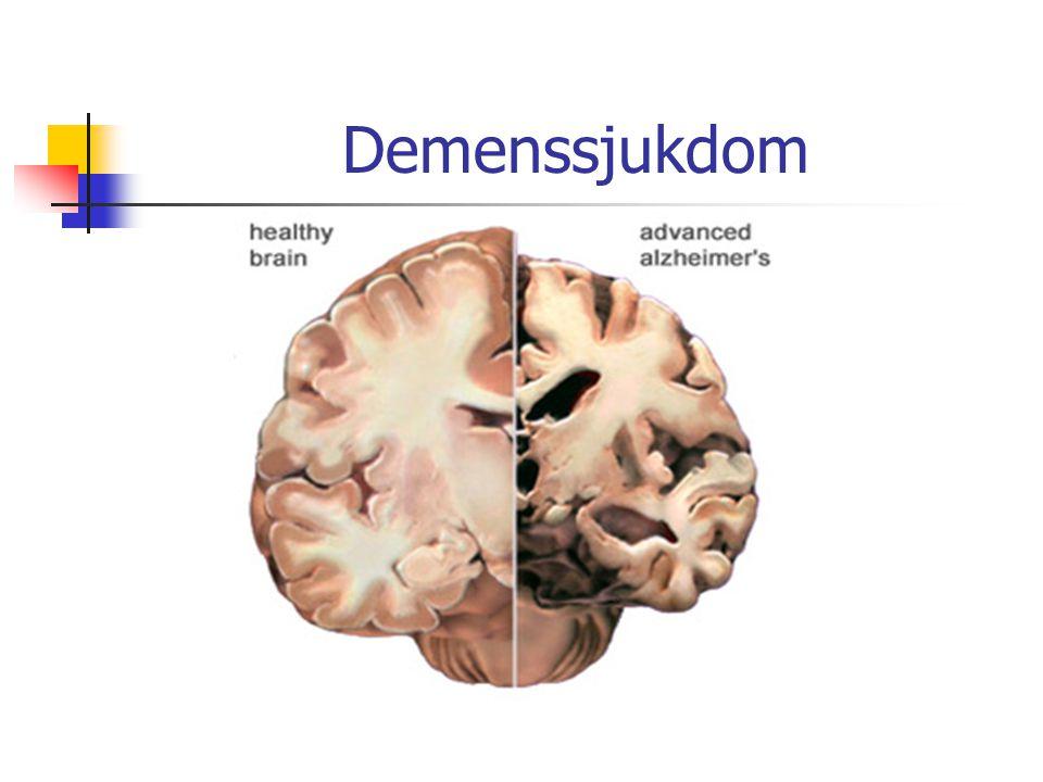 Demenssjukdom