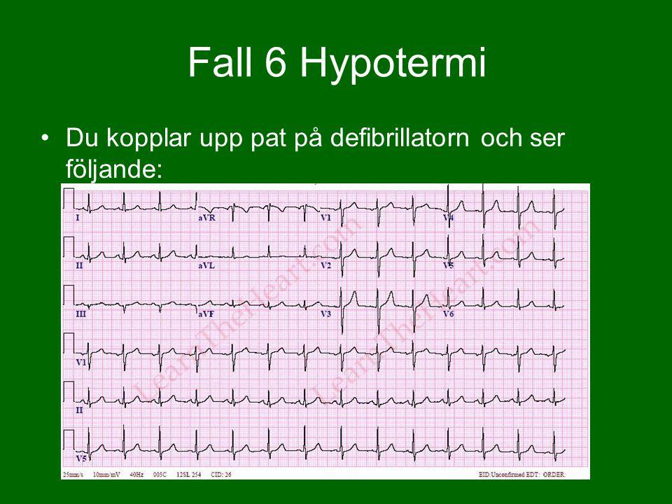 Du kopplar upp pat på defibrillatorn och ser följande: Fall 6 Hypotermi