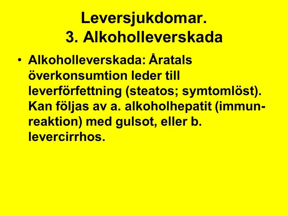 Leversjukdomar. 3. Alkoholleverskada Alkoholleverskada: Åratals överkonsumtion leder till leverförfettning (steatos; symtomlöst). Kan följas av a. alk