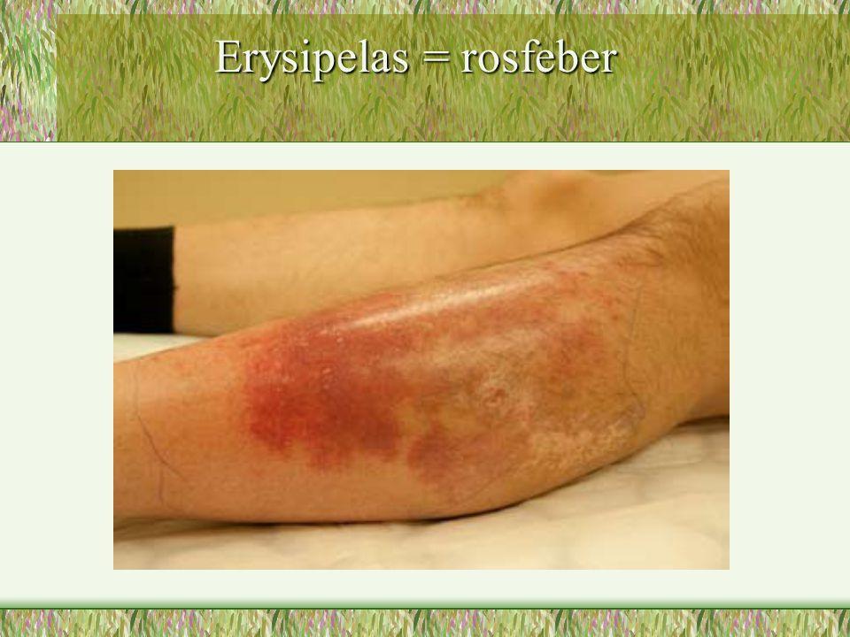 Erysipelas = rosfeber