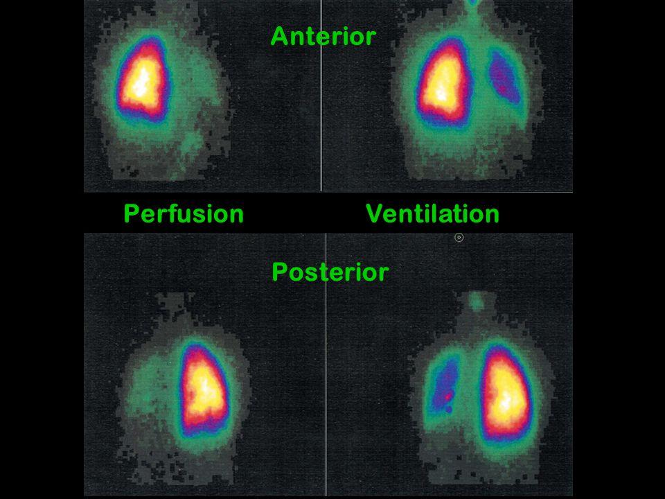 Perfusion Ventilation Anterior Posterior