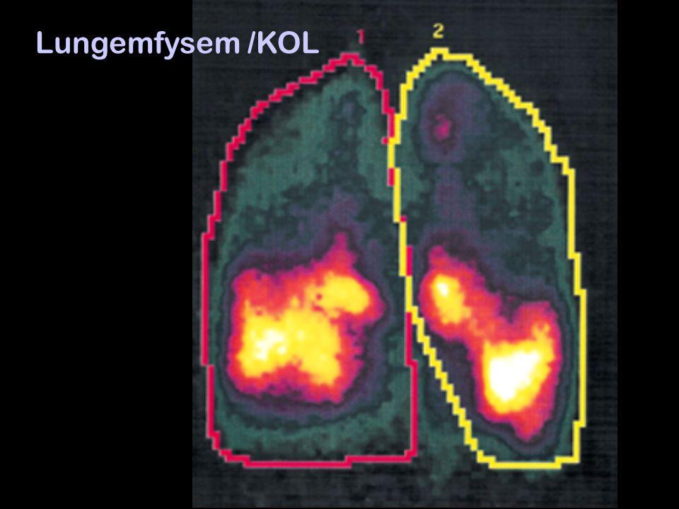 Lungemfysem /KOL