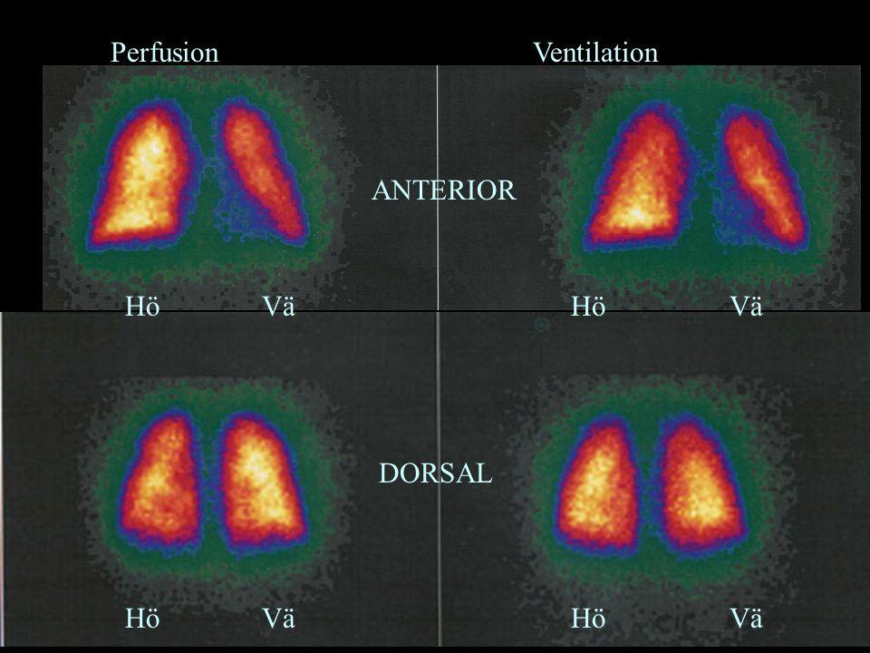 Perfusion Ventilation Hö Vä Hö Vä ANTERIOR DORSAL