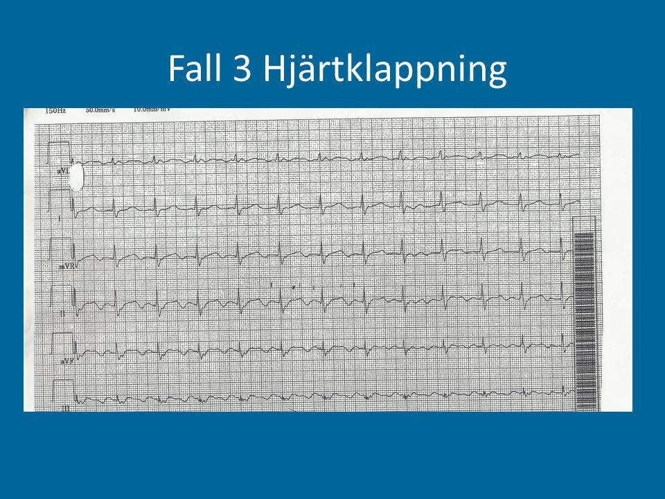 Fall 3 Hjärtklappning